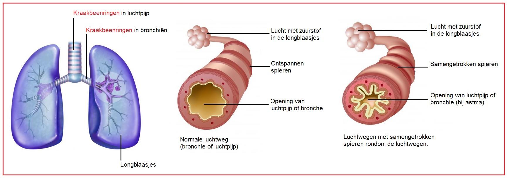Kraakbeenringen